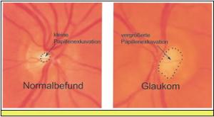 glaukom-01
